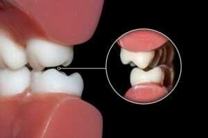 Grinding your teeth | HollowBrook Dental Colorado Spring