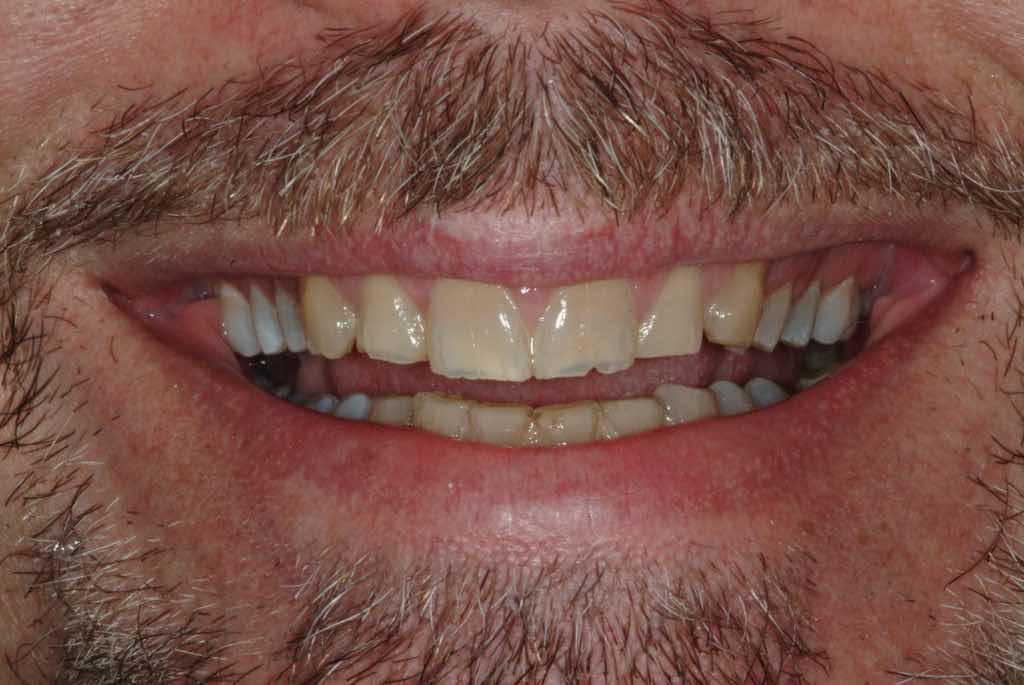 Pocelain Veneers Before - HollowBrook Dental