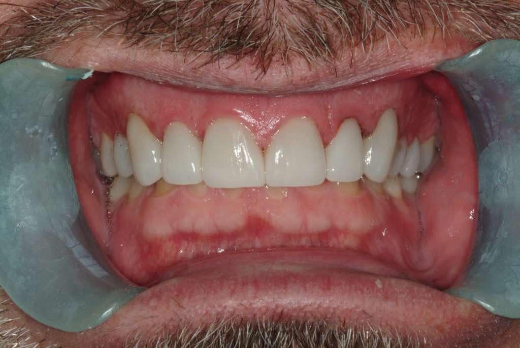 Porcelain Veneers - After - HollowBrook Dental