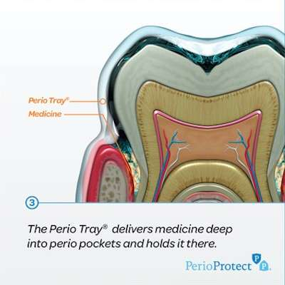 Perio Protect Trays for Gum Disease