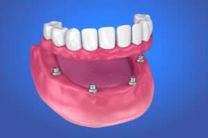 Implant Supported Denture illustration